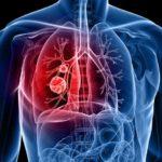 A Harvard Egyetem kutatásában a kannabisz felére csökkenti a tüdőrák tumorok méretét
