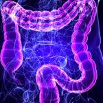 Gyulladásos bélbetegség kezelése és súlygyarapodás kannabisszal