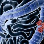 Tanulmány: A CBD csökkenti vastagbél rákos sejtek szaporodását