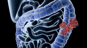 Fájdalomtípusok: honnan eredhet a vastagbélrákos betegek fájdalma? | Rákgyógyítás