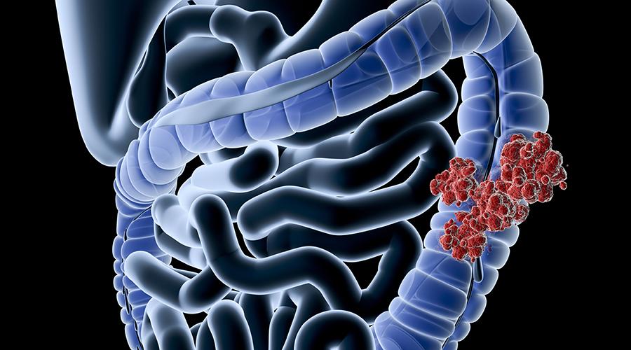 vastagbélrákos könyvek 1. és 2. típusú endometrium rák