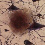 A CBD visszaállíthatja az agy teljesítőképességét az egészséges szintre Alzheimernél