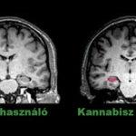 Végre kiderültek a kannabisz hosszú távú hatásai az agyra