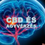 CBD iszkémiás stroke kezelésére: Új kutatás