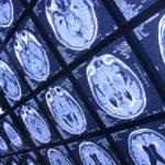 A kannabisz használata javítja az agysérüléses esetek kimenetelét