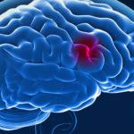 A kannabisz-használat kórtörténete nem önálló kockázati tényezője a stroke-nak