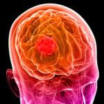 Agydaganatsejtek elhalálozásának fokozása CBD és sugárkezelés kombinálásával