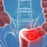 A tanulmány azt mutatja, hogy a CBD-dús kannabisz kivonat hatékonyan kezeli a vastagbélrákot