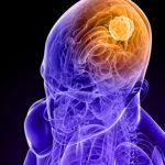 A kannabinoidok glioblasztoma terápiában: régi szerek új alkalmazásai