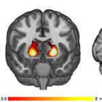 A krónikus kannabiszhasználók agyának szerkezeti változásai