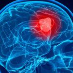 A THC és a CBD temozolomiddal kombinálva segíthet az agydaganat kezelésében