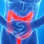 Tanulmány: A kannabinoidok segíthetnek a bélgyulladás kezelésében
