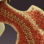 A kannabisz-kivonatok hatékonyabbak, mint a THC vagy a CBD önmagában a csontvelő-transzplantáció súlyos mellékhatásainak csökkentésére