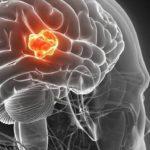 A kannabinoid receptorok szerepe agydaganat kezelésében