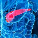 Tanulmány: A kannabinoidok hatékony kiegészítő kezelést jelenthetnek a hasnyálmirigyrákra