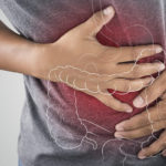 CBD a gyulladásos bélbetegség kezelésében
