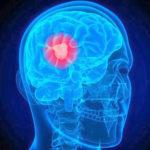 Egy nyílt vizsgálat szerint a CBD pozitív hatással lehet a glioblasztóma túlélésére