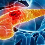 CBD, GPR55 receptor és a gemcitabin kapcsolata hasnyálmirigy daganatokban