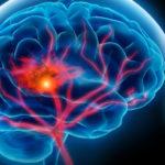 Kutatás: CBD iszkémiás stroke kezelésére