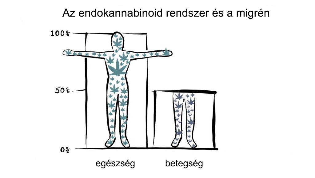 Kendertér - 1 migrene