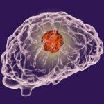 A kannabisz javította az agydaganatos betegek életminőségét egy klinikai vizsgálatban
