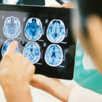 Klinikai vizsgálat: Kannabisz gyógyszer agydaganat kiegészítő kezelésére